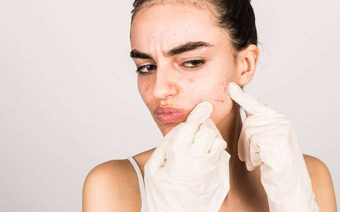 Woman Dealing With Acnes