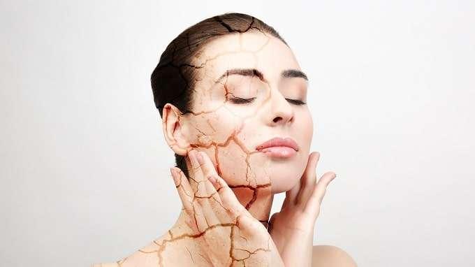 Illustration Of Dry Skin On Woman